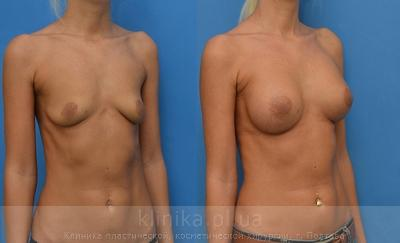 The breast augmentation and breast surgery (the augmentation) image 4007