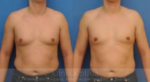 Treatment of gynecomastia image 2910
