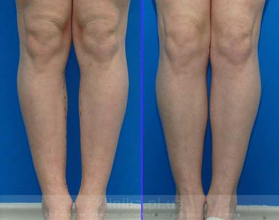 Correction of the lower legs (Cruris plasty)