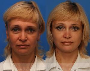 Facelifting image 3926