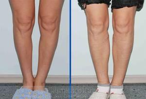 Correction of the lower legs (Cruris plasty) image 2978