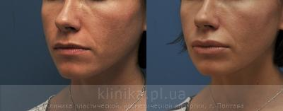 Surgical correction of the shape and volume of the lips (chalinoplasty) image 3885