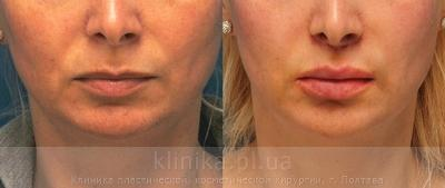 Surgical correction of the shape and volume of the lips (chalinoplasty) image 3892