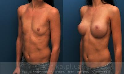 The breast augmentation and breast surgery (the augmentation) image 4005