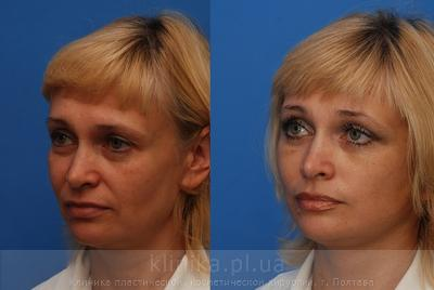 Facelifting image 3927
