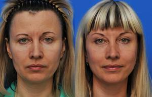 Forehead plastic surgery (frontoplasty)