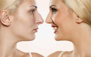 Implants for rhinoplasty: types, pros and cons