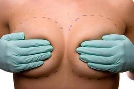 Lipofilling or implants?