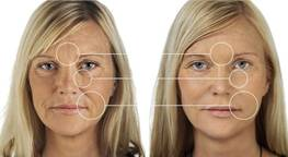 Blepharoplasty or lipofilling - what to choose