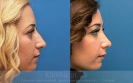 Фото до і після - чому важливо фотографувати пацієнта