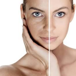 Як позбутися від розширених пор на обличчі?