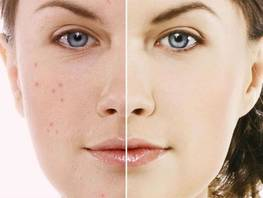 How to get rid of traces after acne?