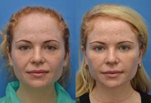 Is it worth to make face lipofilling and what are the advantages