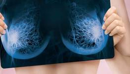 Features of breast diagnosis before and after plastic surgery