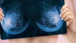 Особливості діагностики грудей до і після пластики