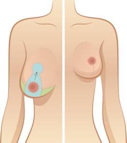 Особливості збільшення грудей при інволюції молочних залоз