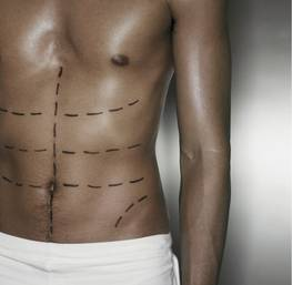 The most popular plastic surgery in men