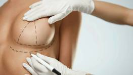 Складка під грудьми після маммопластики: причини і методи корекції