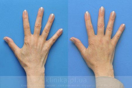 Lipofilling of the hands
