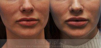 Surgical correction of the shape and volume of the lips